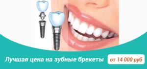 Glavnaya 1 300x141 - Главная