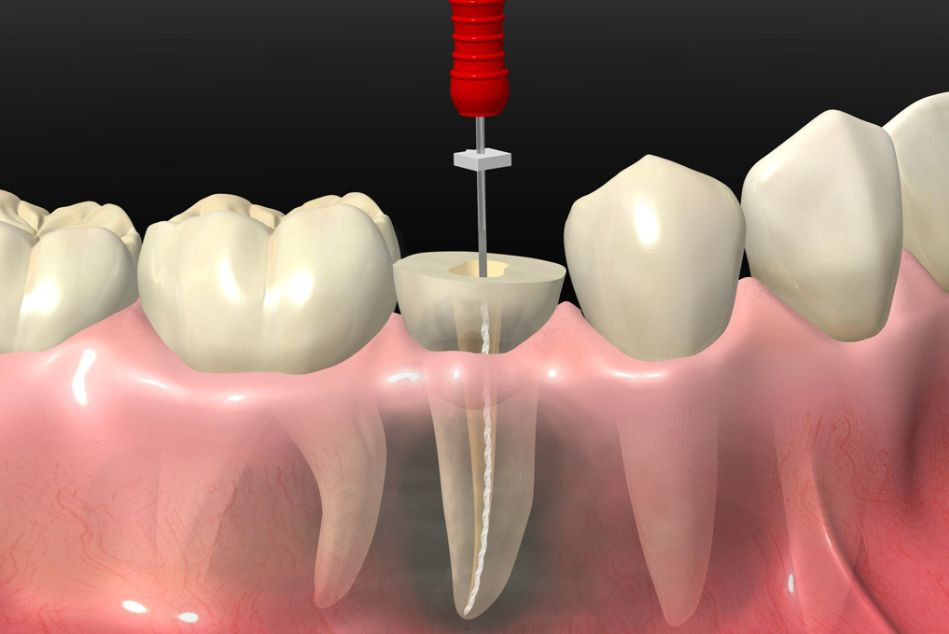 Endodoncia - Лечение пульпита