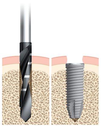 image 1 1 - Имплантат NobelReplace CC