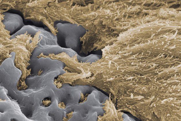 image 3 3 - Имплантат Nobel Speedy