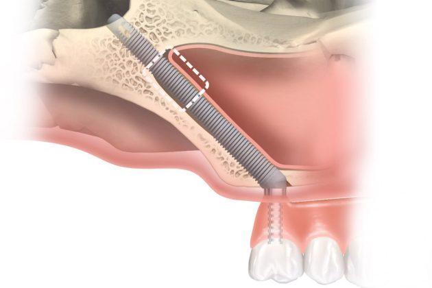 image 4 4 - Имплантат Nobel Brånemark System