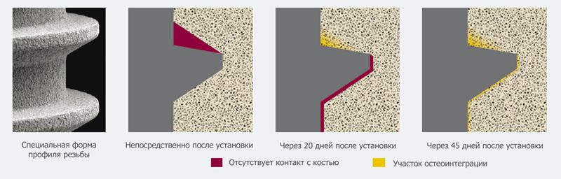 image004 - Имплантат Impro