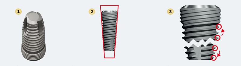 image010 - Имплантат Impro