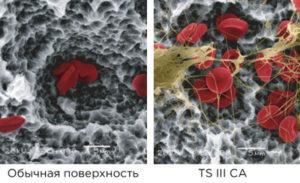 ts ca adv 2 22 300x183 - Имплантат Osstem TS III CA