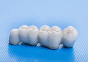 CHto takoe zubnoj most 300x212 - ceramic crowns - in a dental laboratory